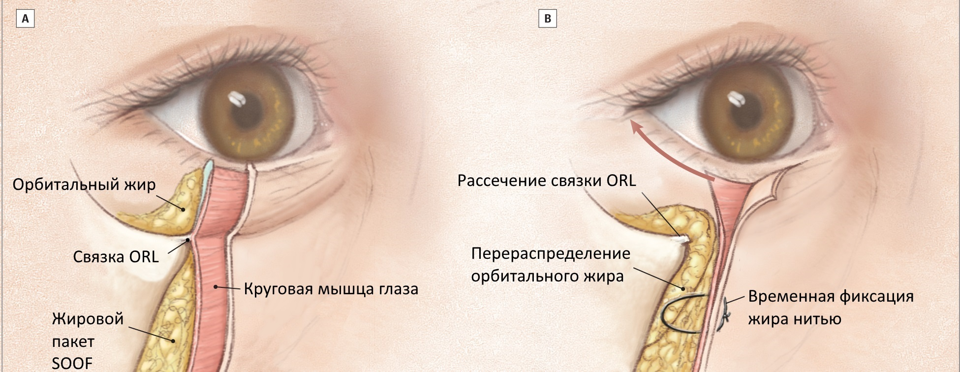 Lower Blepharoplasty Anatomy